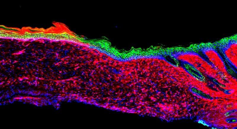 Umwandlung von Wundzellen